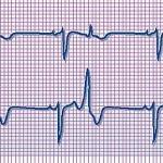 Martedì 27 aprile la Cardiologia Ciriè partecipa a un evento sulle aritmie cardiache